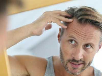 男生如何打扮自己的头发 怎样打扮自己的头发