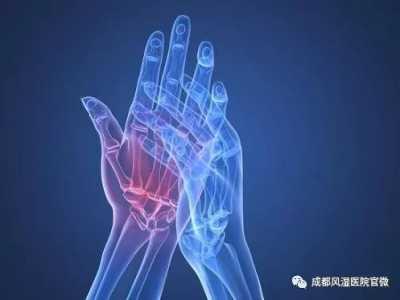 年轻人患上类风湿性关节炎的原因 风湿关节炎的发病原因