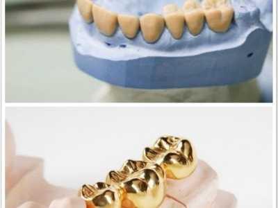 烤瓷牙的四种 烤瓷美白牙齿的危害