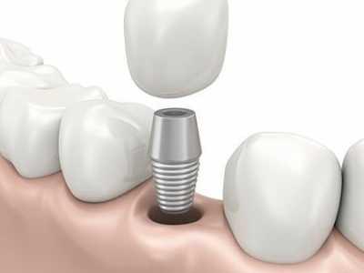 种植牙要花费多长的时间呢 种植牙需要多长时间
