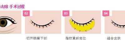 韩国无痕去眼袋另有别名 无痕眼袋去除