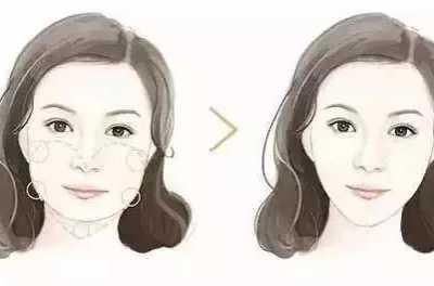 玻尿酸还有这种神奇的功效 玻尿酸瘦脸
